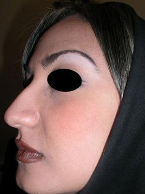 نمونه Cosmetic nose surgery کد sa41