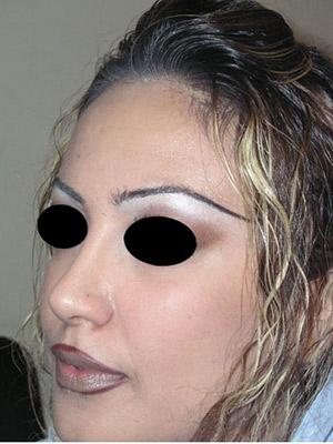 نمونه Cosmetic nose surgery کد sa42