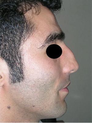 نمونه Cosmetic nose surgery کد sa43