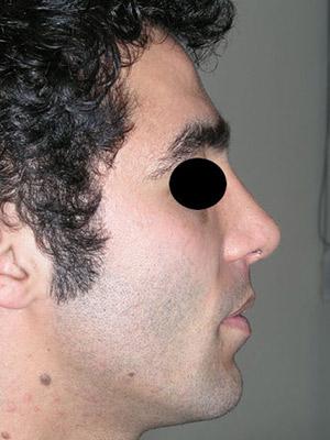 نمونه Cosmetic nose surgery کد sa44