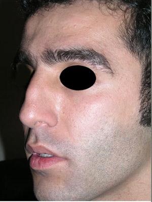 نمونه Cosmetic nose surgery کد sa45