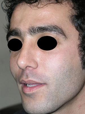 نمونه Cosmetic nose surgery کد sa46