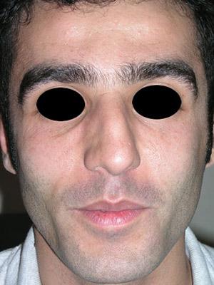 نمونه Cosmetic nose surgery کد sa47