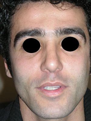 نمونه Cosmetic nose surgery کد sa48