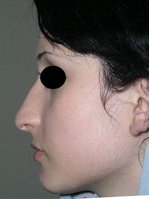 نمونه nose surgery gallery کد sa49