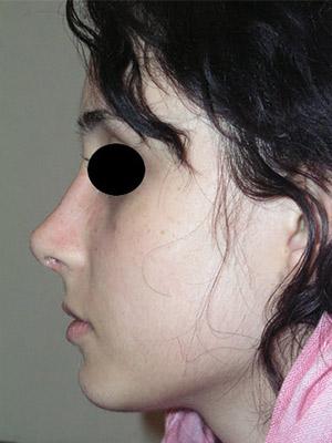 نمونه Cosmetic nose surgery کد sa50
