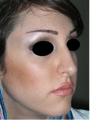 نمونه Cosmetic nose surgery کد sa51