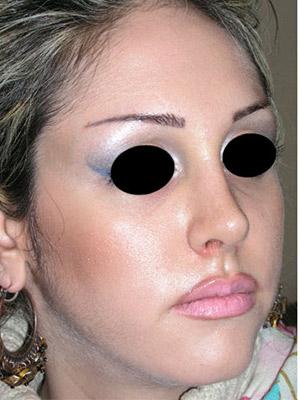نمونه Cosmetic nose surgery کد sa52