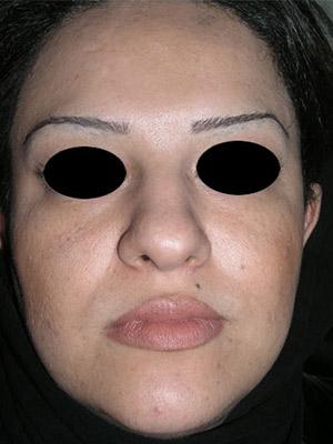 نمونه Cosmetic nose surgery کد sa53
