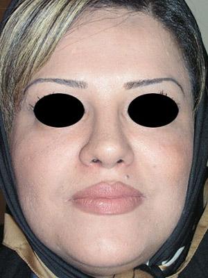 نمونه Cosmetic nose surgery کد sa54