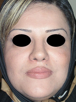 نمونه nose surgery gallery کد sa54