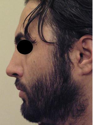 نمونه Cosmetic nose surgery کد sa56