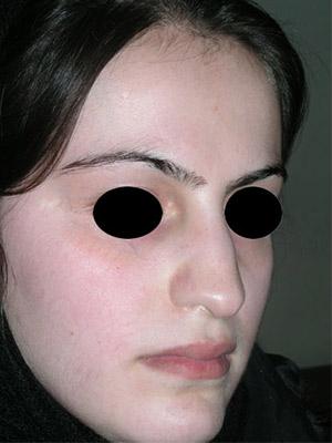 نمونه Cosmetic nose surgery کد sa57