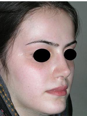 نمونه Cosmetic nose surgery کد sa58