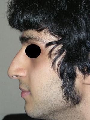 نمونه Cosmetic nose surgery کد sa59