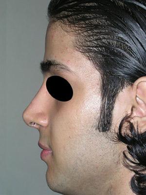 نمونه Cosmetic nose surgery کد sa60