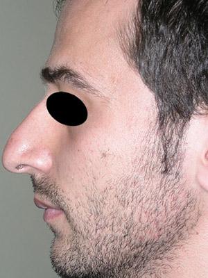 نمونه Cosmetic nose surgery کد sa7