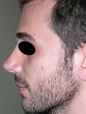 نمونه Cosmetic nose surgery کد sa8
