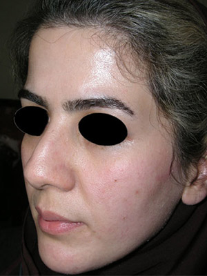 نمونه Cosmetic nose surgery کد sa9
