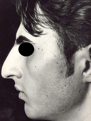 نمونه Cosmetic nose surgery کد sa955