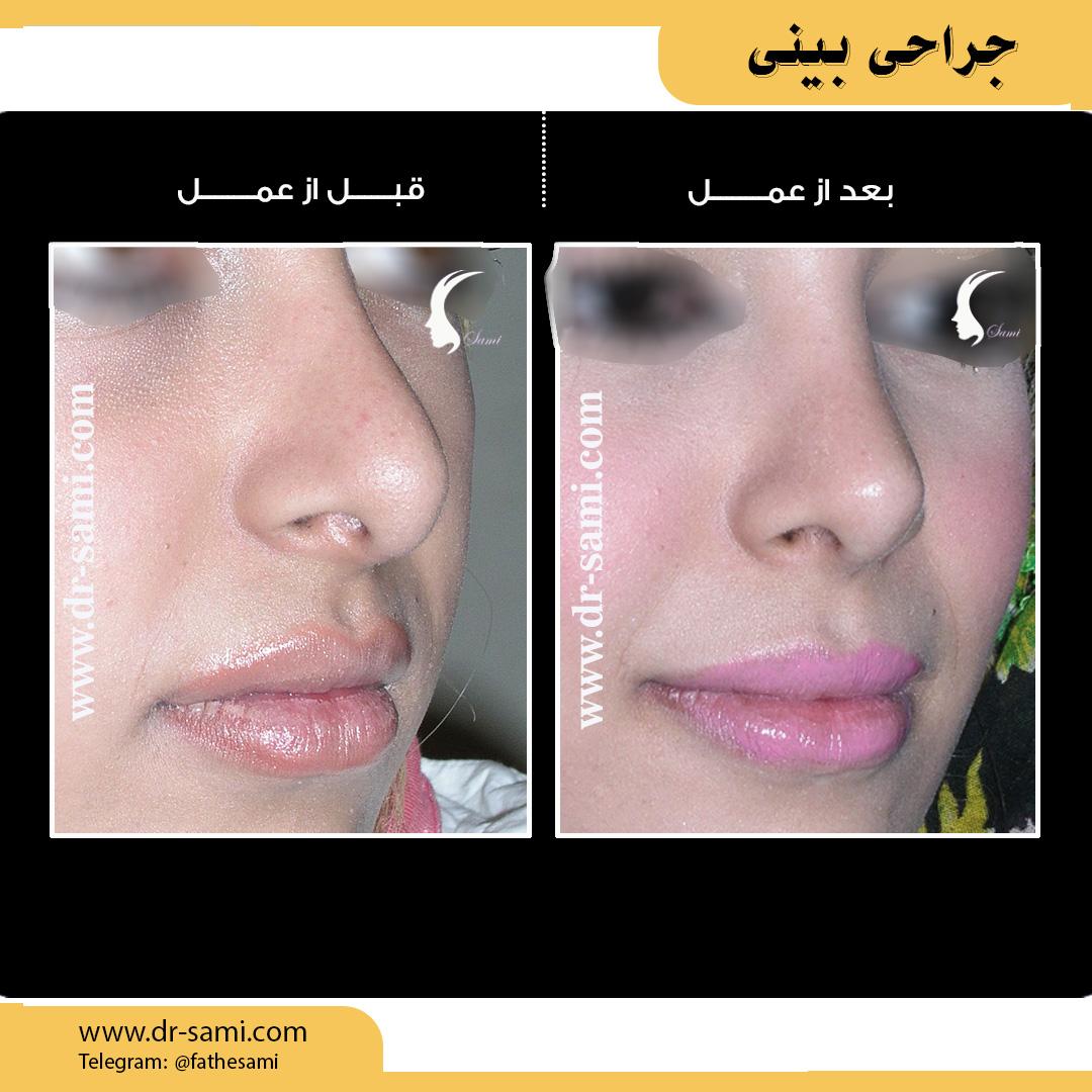 بهترین جراح بینی ایران دکتر سامی | عمل دماغ | هزینه عمل بینی