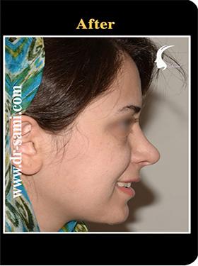 نمونه nose surgery gallery کد n92-after