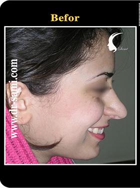 نمونه nose surgery gallery کد n92-befor