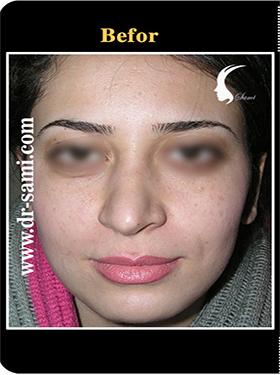 نمونه nose surgery gallery کد n93-befor