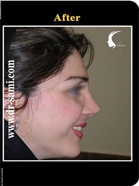 نمونه nose surgery gallery کد n94-after