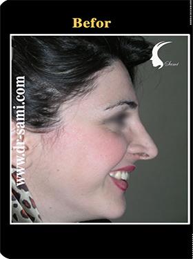 نمونه nose surgery gallery کد n94-befor
